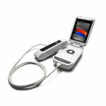 GE VScan Portable Ultrasound